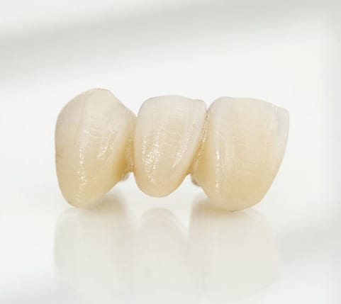 Dental Bridge Auckland replace missing tooth