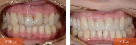 cosmetic dentistry veneers 470x157 - Cosmetic Dentistry