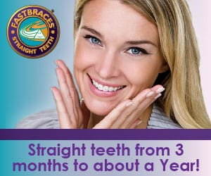 Fastbraces -cosmetic dentistry in Auckland