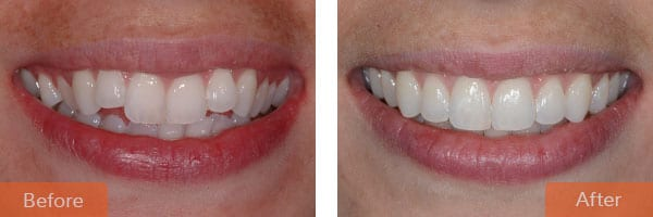 orthodontics - Orthodontic braces