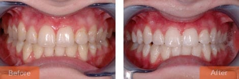 teeth whitening 470x157 - Cosmetic Dentistry